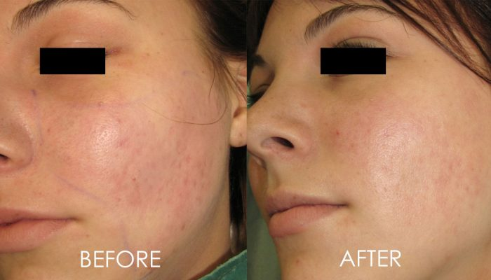 laser treatment acne scars before and after