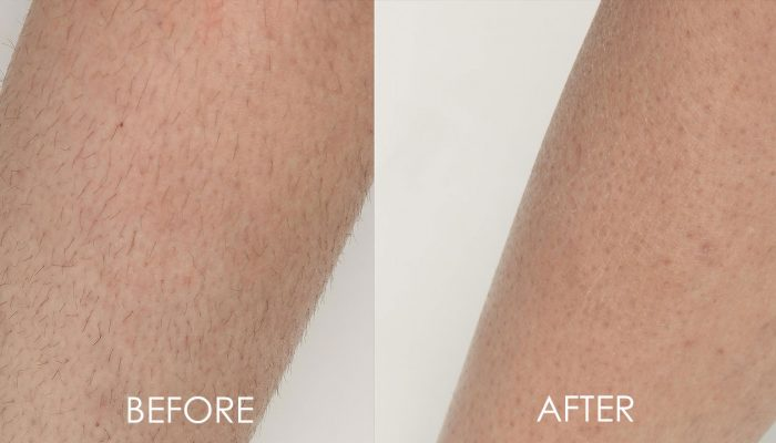 hair removal before and after diolaze