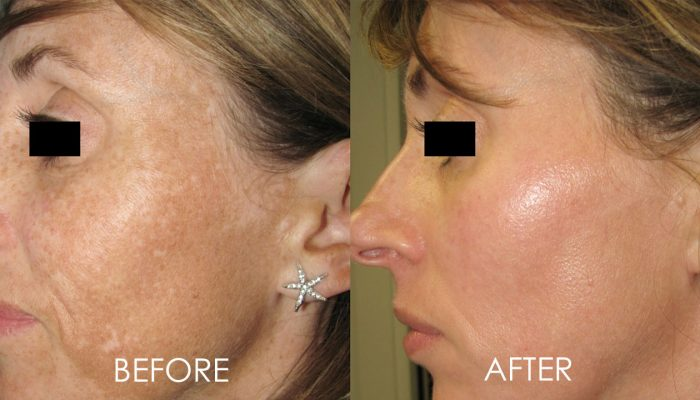 before and after laser facial