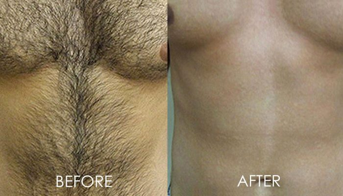 mens hair removal before and after laser treatment