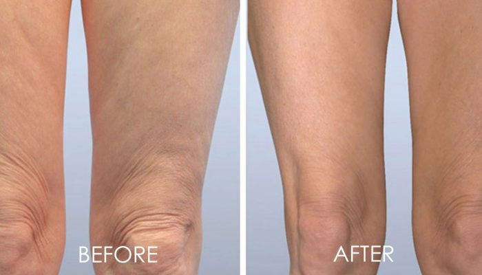 before and after of skin tightening